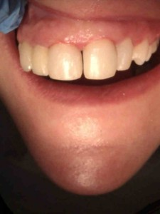 Composite Fillings(After)