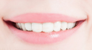Close-up with perfect female smile after bleaching or whitening concept